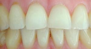 Blanqueamiento dental en Barcelona. Cantador Dental