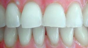 Tratamientos de ortodoncia General en Barcelona y Santa Perpetua para toda la familia