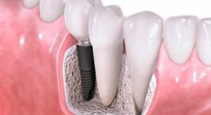 Implantes Dentales en Clínica Dental Cantador