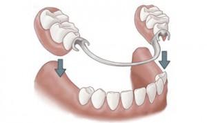 Puentes y coronas dentales. Clínica Dental Cantador