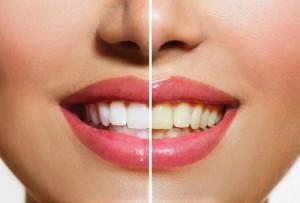 Blanqueamiento por Láser en Clínica Dental Cantador