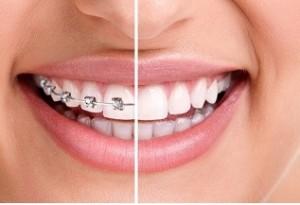 Corrector dental con la Ortodoncia
