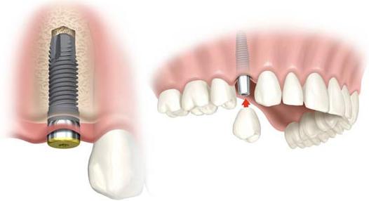 El implante dental